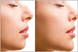 Nose Plastic Surgery Or Rhinoplasty Surgery