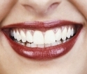 Smile Designing And Full Mouth Rehabilitation Services
