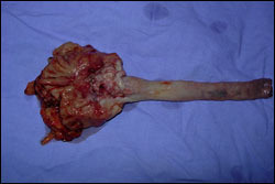 Surgery for Corrosive Esophageal Injury