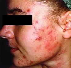 Acne Surgery Service