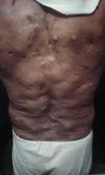 Neurofibromas Treatment Services