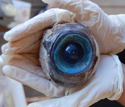 Enucleation Eye