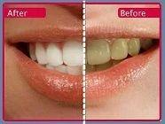 Valuable heartland dento facial can