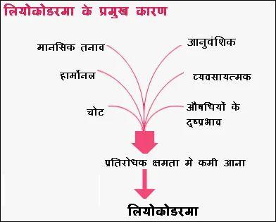 Causes of Leucoderma in Vaishali, Ghaziabad | ID: 4892435988