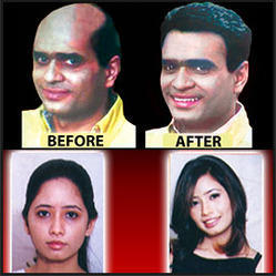 Male And Female Permanent Treatment For Hairfall And Dandruff