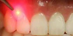Laser Gum Contouring
