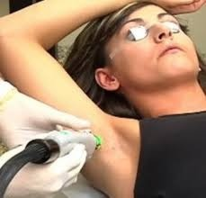 Q Switched Nd Yag Laser Treatment