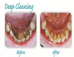 Deep Cleaning Dental Treatment