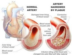 Chelation Therapy in Hyderabad | ID: 6353347548