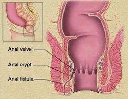 anal-valve-midgetgirl-fuck-bigdick