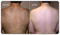Laser Hair Removal Services in Ahmedabad, लेजर हेयर