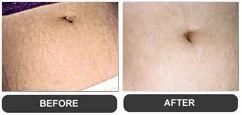 Stretcth Marks Laser Skin Treatment