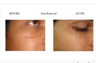 Laser Scar Removal Treatment Service In Mulund West Mumbai Amrit