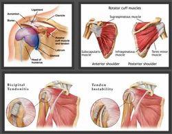 Shoulder Arthritis