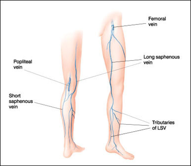the long saphenous vein (lsv), laparoscopy surgery treatment in, Human Body