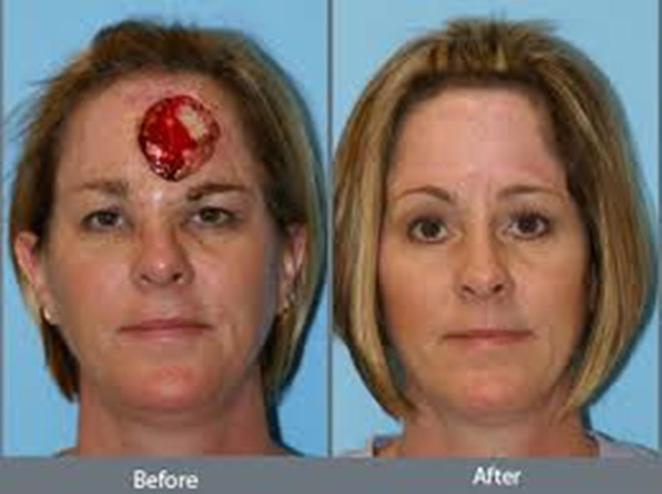 Aesthetic facial reconstructive plastic surgery