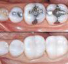 Cavities and Fillings