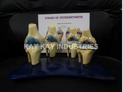 Pathological Models Natural 4 Stage Osteoarthritis Model, For Medical College