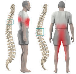 Spine Surgery Treatments Offered At Best Hospital