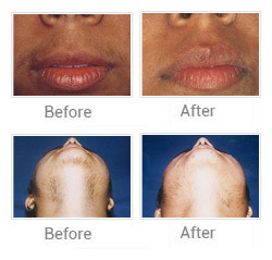 Laser Hair Removal Acne Treatments Service Provider From Mumbai