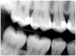 X-Rays Dental