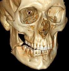 Mandibular Fracture Treatment