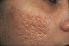 Acne Scars Treatment, Acne Treatment Services - Clinic Skin