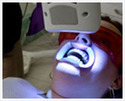 Laser Teeth Bleaching