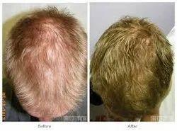 Hair Regrowth (Laser + Prp)