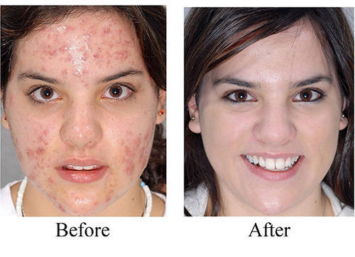 Chemical Peeling Treatment Acne Acne Scars Peeling
