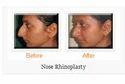 Nose Reshaping / Rhinoplasty Treatment