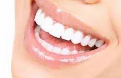 Smile Designing Dental Treatment Services