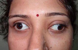Thyroid Eye Disease In Opposite G Canvanve Ground Amritsar Id