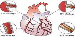Heart Block Treatment