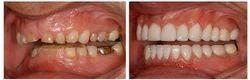 Full Mouth Rehabilitation Treatment Service