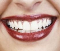 Smile Designing And Full Mouth Rehabilitation Service