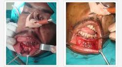 Oral maxillary facial surgery