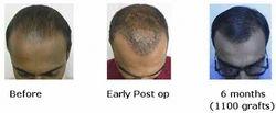 Follicular Unit Extraction Hair Transplant