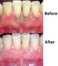 Treatments Gum Treatment Flap Surgery Service Provider