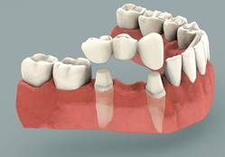 Replacment for Missing Teeths