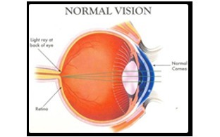 Cataract Formation Service
