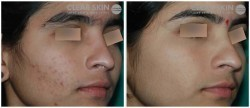 Acne Excoriated Treatments