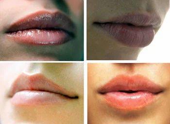 Lip Surgery, Aesthetic Surgery, Cosmetic Surgery