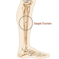 Simple And Complex Fractures