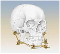 Treatment of Jaw Fracture