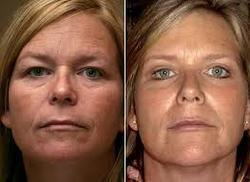 Mummy's Makeover - Liposuction Service Provider from Ahmedabad
