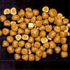 Calcium Oxalate Stones Treatment