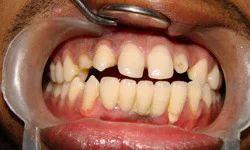 Spa Dentistry