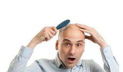 Male Baldness Hair Transplantation