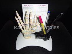 Hand Arthritis Model